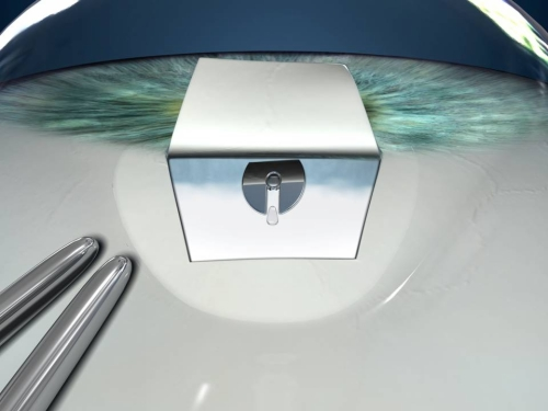 Impianto Valvolare nel Glaucoma